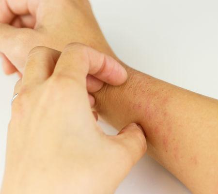 Vodol - Frieira, candidíase e mais: saiba como prevenir e tratar micoses de pele